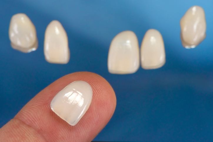 Porcelain Veneers in East Wenatchee, Washington with Johnson Family Dental